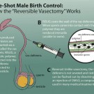 Reversible Vasectomy