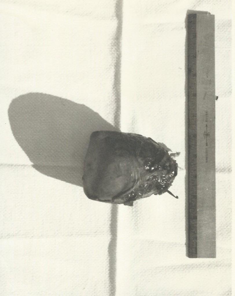 SiegelCrochetHookUterus1